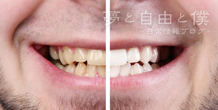 歯が汚れる原因は?
